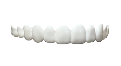 bright white veneers